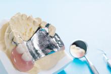 Close Up, Removable Partial Denture (RPD.) On Blue Background.