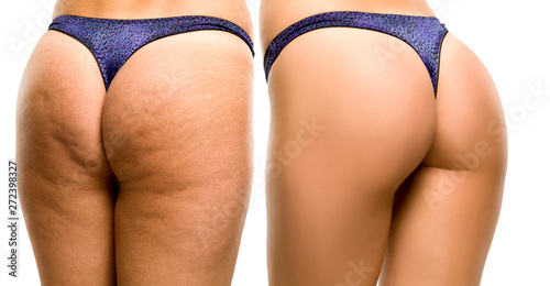 Fototapeta  Female buttocks before and after on white background