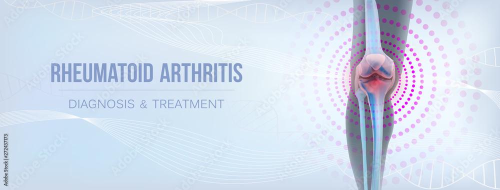 Fototapety, obrazy: Vertical light rheumatoid arthritis Bones the of knee