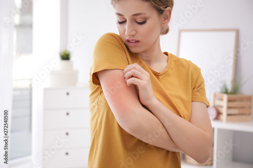Fotografie, Tablou Woman scratching arm indoors, space for text. Allergy symptoms