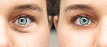 A Closeup View On The Blue Eye...