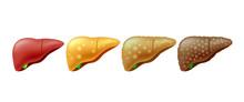 Stages Of Liver Damage. Liver ...