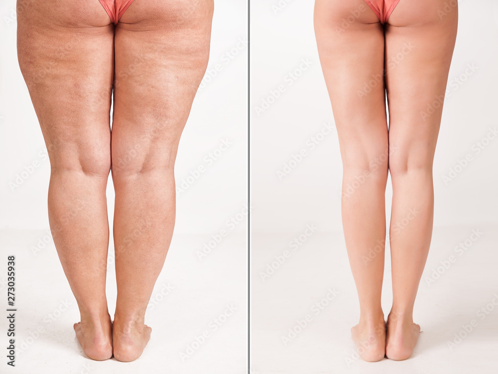 Gamesageddon Stock Comparison Before And After Weight Loss Women S Legs The Result Of Liposuction The Fight Against Obesity And Cellulite Skin Rejuvenation Fitness And Nutrition