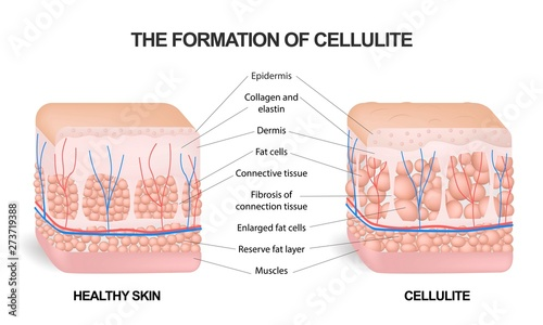 The formation of cellulite Canvas Print