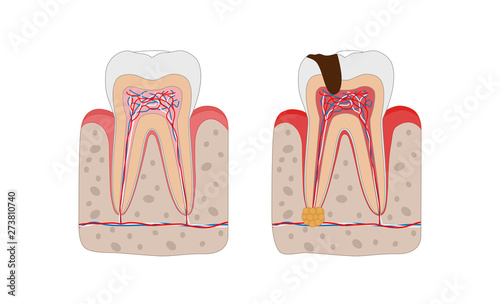 Photo Healthy tooth and unhealthy tooth with tooth decay and dental abscess infographic elements isolated on white background