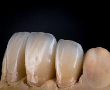 Dental Veneers And Crowns