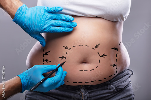 Cuadros en Lienzo  Plastic Surgeon Drawing On Woman's Body For Surgery