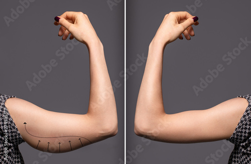Fototapeta Woman arms with bat wings, comparison between before and after brachioplasty sur