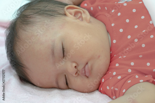 Baby girl is sleeping with illness of allergy  Baby has many