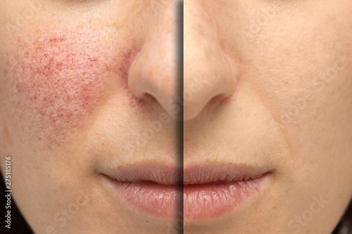 Fotografie, Obraz  A close up view on the cheeks of a young Caucasian woman suffering from rosacea