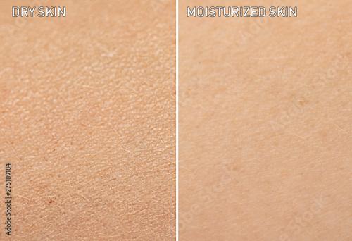 Billede på lærred An extreme close up view of human skin, before and after moisturizer is applied