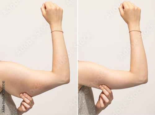 Fotografia, Obraz  A split screen of a woman pinching the skin beneath her arm