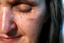 Pigmented Spots On The Face. P...