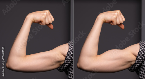 Photo A before and after view on the arm of a young Caucasian woman