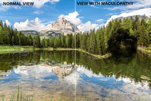 A Split Screen View Of A Scenic Lake By A Large Mountain In The Alps. Showing The Before And After Vison Of A Diabetic Person With A Dark Spot Of Maculopathy In Field Of Vision.