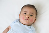 Asian baby boy lying on the bed and had a red rash on the face, Skin common rashes in newborn concept