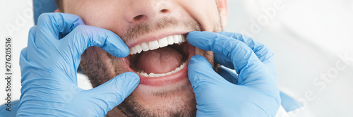 fototapeta na lodówkę Man having teeth examined at dentists