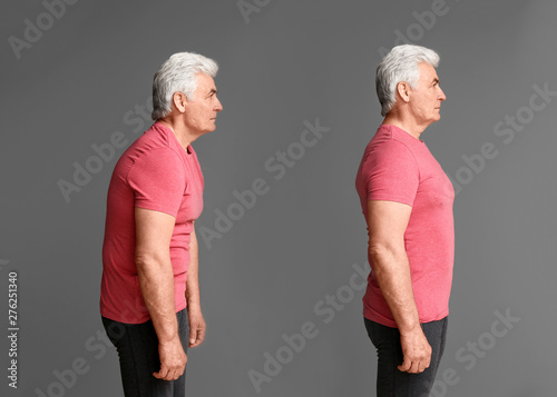 Fotografia  Mature man with poor and good posture on grey background