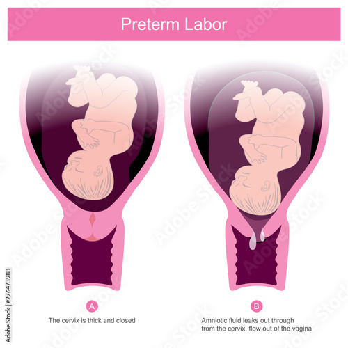 Valokuvatapetti The premature birth, can occur in conditions of amniotic fluid leaks out through the cervix