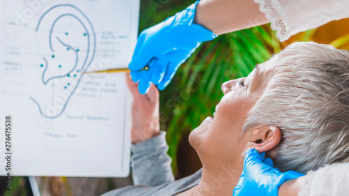 Photo Ear Acupuncture Point Therapy
