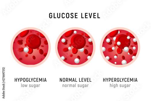 Cuadros en Lienzo  Glucose blood level sugar test
