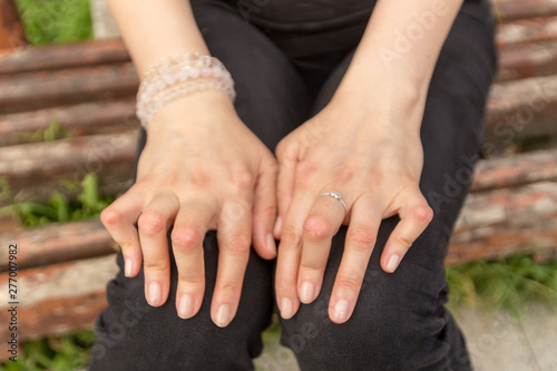 Young woman having rheumatoid arthritis takes a rest sittinng on a bench at a yard of a hospital Fototapeta