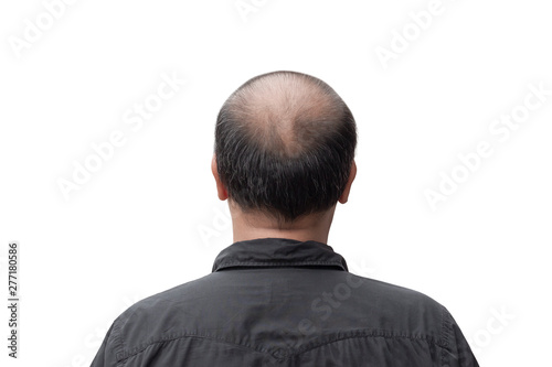 Fotografia, Obraz  man thin hair