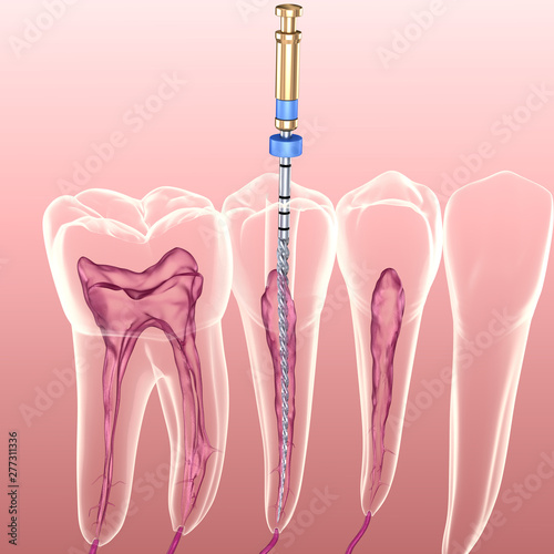 Obraz Endodontic root canal treatment process. Medically accurate tooth 3D illustration. - fototapety do salonu