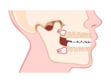 Human Jaw With Wisdom Teeth Side View
