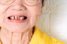 Asian Elderly Woman Over 70 Years Old Be Smile With A Few Broken Teeth Here Have Problem Of Ability To Chew Food Of The Elderly. Here Need Dentures For Replace Missing Teeth And Helping To Chew Food.