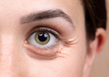 A Close Up View On The Eye Of A Thirty Something Caucasian Lady With Brownish Green Eyes. A Puffy Dark Eye Bag Is Seen Beneath The Eye. Common Symptom Of Sleep Deprivation.