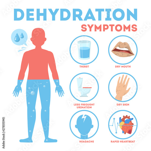 Fotografia, Obraz Dehydration symptoms infographic. Dry mouth and thirsty