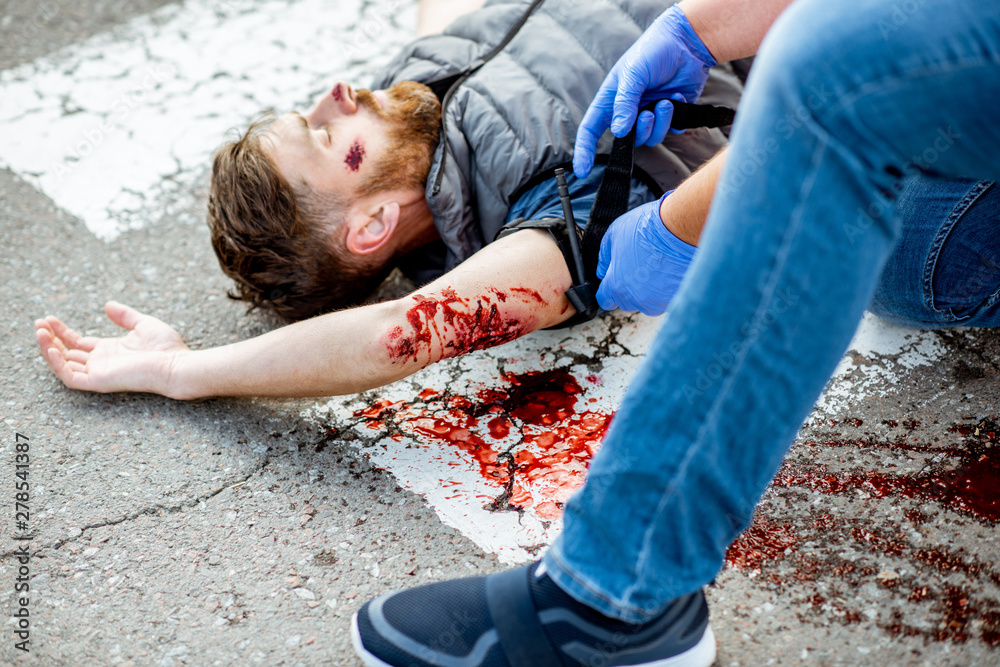 Fototapety, obrazy: Applying first aid to the injured bleeding man, wearing tourniquet on the arm after the road accident on the pedestrian crossing