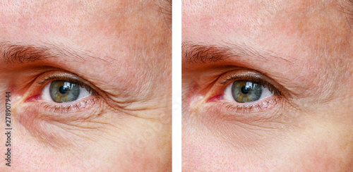 Photo  Procedure for the rejuvenation of wrinkles around the eyes, crow's feet,  before