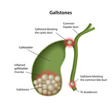 Gallstones In The Gallbladder ...