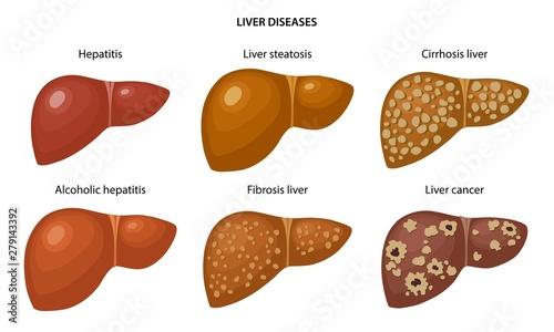 Liver disease: fatty, fibrosis, alcoholic hepatitis