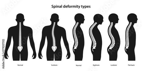 Photo  Spinal deformity types