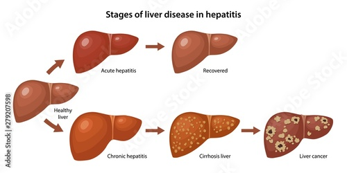 Obraz Stages of liver disease in hepatitis with description corresponding steps: healthy, acute, chronic hepatitis, cirrhosis and cancer liver. Vector illustration in flat style over white background - fototapety do salonu