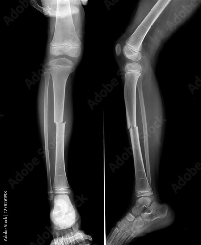 Radiography of Tibial fracture at mid shaft of the bone in young boy patient Fototapet
