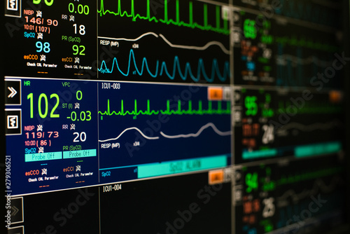 Canvastavla Modern vital signs monitor display at ICU in hospital.