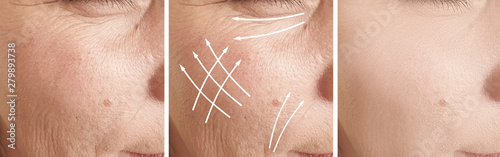 Fotografie, Tablou woman wrinkles face before and after treatment, arrow,