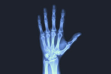 X-rayed Human Hand. X-ray Of H...