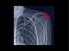 Film X-ray Shoulder Radiograph Showing Calcium Deposit On Rotator Cuff Tendon (calcific Tendinitis Or Tendinosis). The Calcified Tendon Cause Shoulder Pain And Stiffness. Medical Concept
