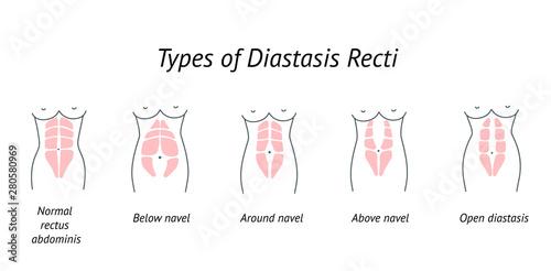 Carta da parati Different types of Diastasis Recti
