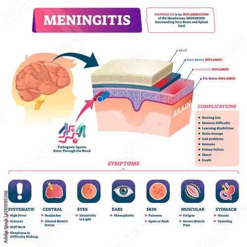 Photo Meningitis vector illustration