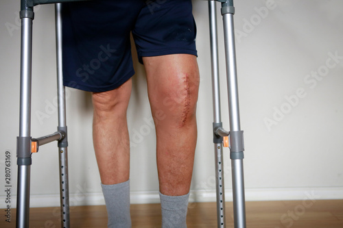 Man with walker after knee replacement surgery, stitches close up Canvas Print