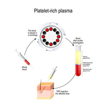 Platelet-rich Plasma. PRP Is A Medical Procedure For Hair Growth Stimulation