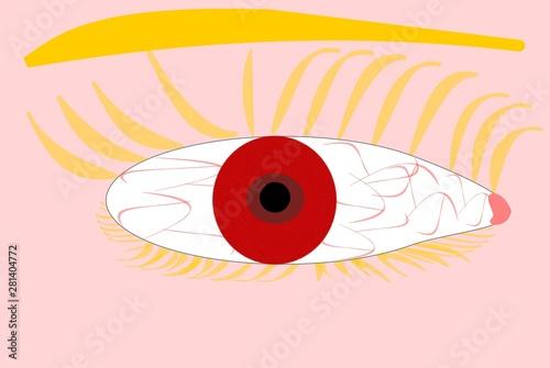 Albinismus bei einem blonden Menschen - Albino - Rotes Auge Canvas Print