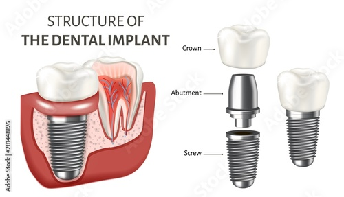 Educational poster showing a structure of the dental implant Wallpaper Mural