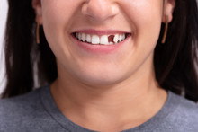 Woman With Missing Tooth